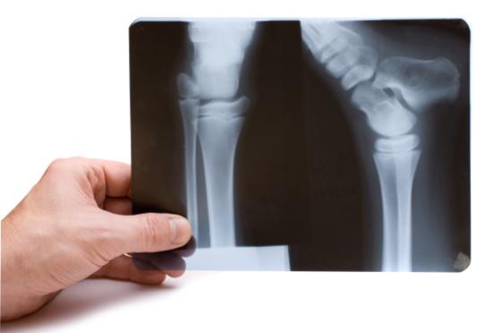 røntgenbilde.jpg (Bredde: 560px)
