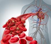 Blodpropp_illustrasjon TREC