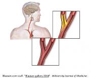 Åreforkalkning i halskarene, TREC