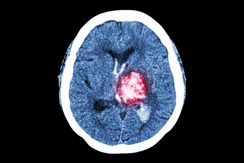 CT av en hjerneblødning