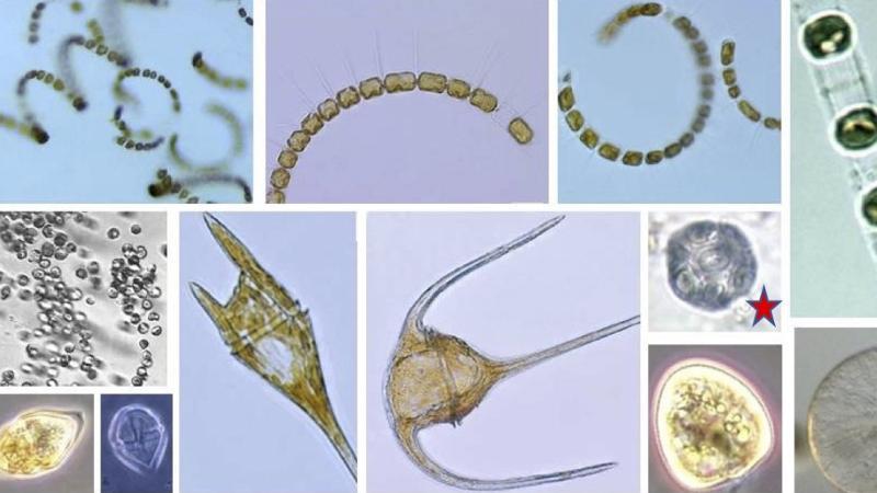 Marine plankton. Photo: Philipp Assmy, Marina Montresor