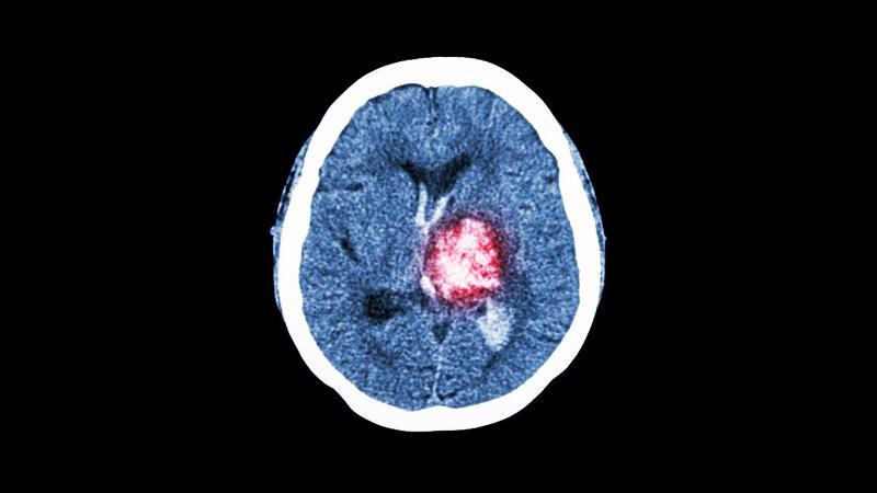 CT-scan av hjerne. Foto: Mostphotos