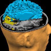 Hjerne-MR